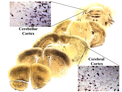 Generation of Chimeric Mouse Brains by Engraftment of Genetically Engineered NSCs