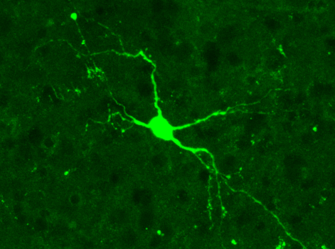 Rebound Neurons.png